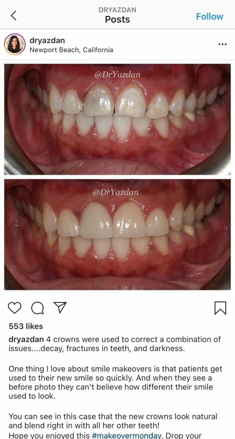 Dentist Instagram example