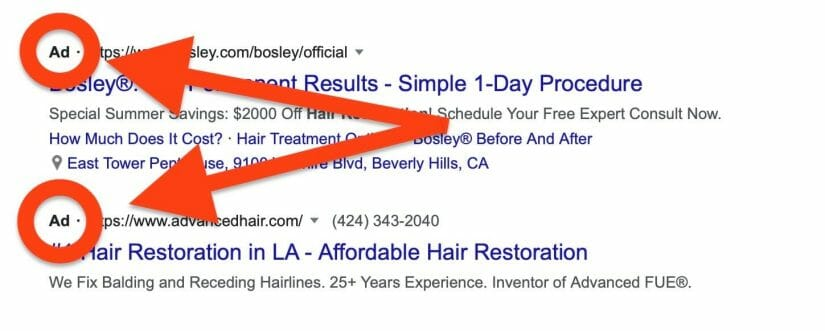 search-results-hair-restoration