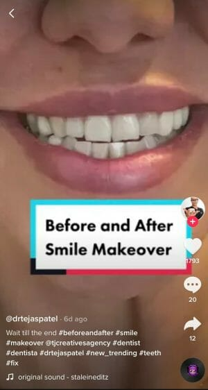 tiktok for dentists before and after video example